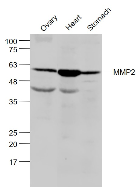 Lane 1: Mouse Ovary lysates; Lane 2: Mouse Heart lysates; Lane 3: Mouse Stomach lysates probed with MMP2 Polyclonal Antibody, Unconjugated (bs-0412R) at 1:300 dilution and 4\u02daC overnight incubation. Followed by conjugated secondary antibody incubation at 1:20000 for 60 min at 37\u02daC.