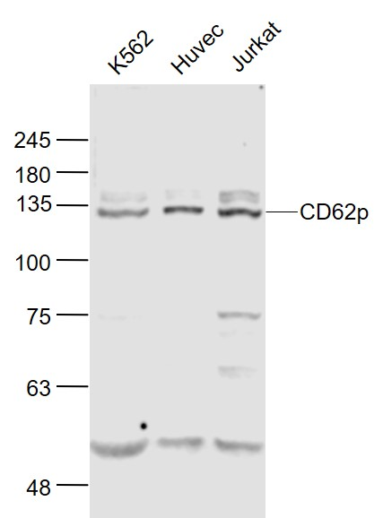 Lane 1: K562 cell lysates; Lane 2: Huvec cell lysates; Lane 3: Jurkat cell lysates probed with CD62p Polyclonal Antibody, Unconjugated (bs-0561R) at 1:1000 dilution and 4˚C overnight incubation. Followed by conjugated secondary antibody incubation at 1:20000 for 60 min at 37˚C.