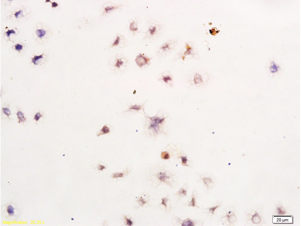 Human Gastric Cancer Cells labeled with Anti-Survivin Polyclonal Antibody, Unconjugated (bs-0615R) at 1:300, followed by conjugation to the secondary antibody and DAB staining