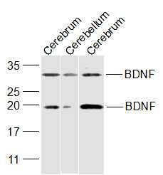 Lane 1: Mouse Cerebrum cell lysates probed with BDNF Polyclonal Antibody, Unconjugated (bs-4989R) at 1:300 dilution and 4\u02daC overnight incubation. Followed by conjugated secondary antibody incubation at 1:20000 for 60 min at 37\u02daC.