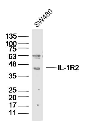 Lane 1: SW480 cell lysates probed with IL-1R2 Polyclonal Antibody, Unconjugated (bs-2595R) at 1:1000 dilution and 4\u02daC overnight incubation. Followed by conjugated secondary antibody incubation at 1:20000 for 60 min at 37\u02daC.
