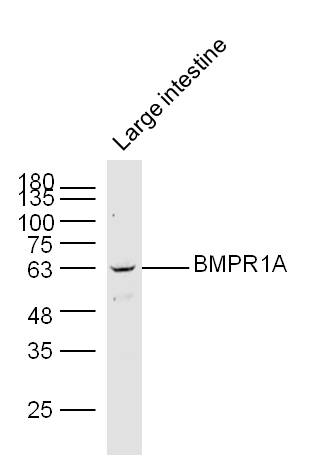 Lane 1: Mouse Large intestine lysates probed with BMPR1A Polyclonal Antibody, Unconjugated (bs-1509R) at 1:1000 dilution and 4\u02daC overnight incubation. Followed by conjugated secondary antibody incubation at 1:20000 for 60 min at 37\u02daC.