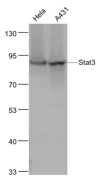 Lane 1: Hela cell lysates; Lane 2: A431 cell lysates probed with Stat3 Monoclonal Antibody, Unconjugated (bsm-52235R) at 1:1000 dilution and 4\u02daC overnight incubation. Followed by conjugated secondary antibody incubation at 1:20000 for 60 min at 37\u02daC.