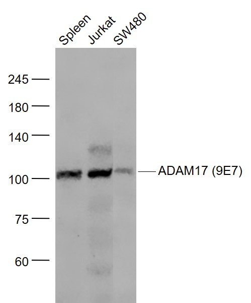 Lane 1: Mouse Spleen lysates; Lane 2: Jurkat cell lysates; Lane 3: SW480 cell lysates probed with ADAM17 (9E7) Monoclonal Antibody, Unconjugated (bsm-52009R) at 1:1000 dilution and 4\u02daC overnight incubation. Followed by conjugated secondary antibody incubation at 1:20000 for 60 min at 37\u02daC.