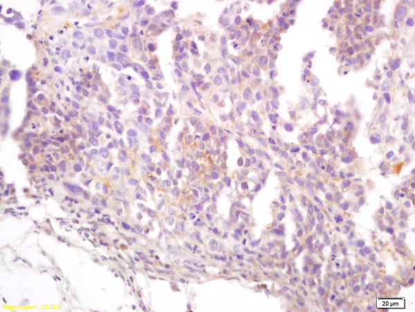 Formalin-fixed and paraffin embedded rat lung carcinoma labeled with Anti CD22\/BLCAM  Polyclonal Antibody, Unconjugated (bs-1481R) at 1:200 followed by conjugation to the secondary antibody and DAB staining