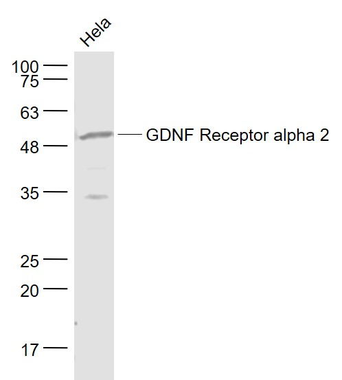 Lane 1: Hela cell lysates probed with GDNF Receptor alpha 2 Polyclonal Antibody, Unconjugated (bs-0054R) at 1:1000 dilution and 4\u02daC overnight incubation. Followed by conjugated secondary antibody incubation at 1:20000 for 60 min at 37\u02daC.
