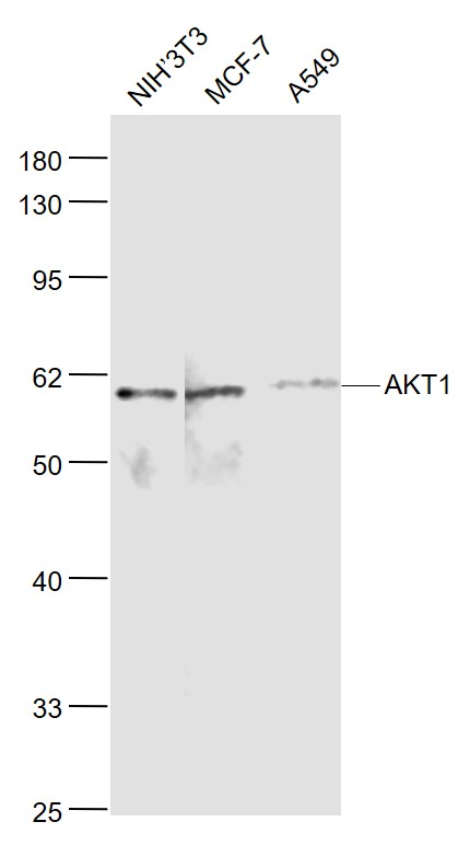 Lane 1: NIH\/3T3 cell lysates; Lane 2: MCF-7 cell lysates; Lane 3: A549 cell lysates probed with AKT1 Polyclonal Antibody, Unconjugated (bs-0115M) at 1:1000 dilution and 4˚C overnight incubation. Followed by conjugated secondary antibody incubation at 1:20000 for 60 min at 37˚C.
