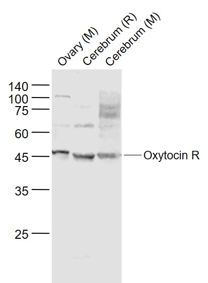 Lane 1: Mouse Ovary lysates; Lane 2: Rat Cerebrum lysates; Lane 3: Mouse Cerebrum lysates probed with Oxytocin R Polyclonal Antibody, Unconjugated (bs-1314R) at 1:1000 dilution and 4\u02daC overnight incubation. Followed by conjugated secondary antibody incubation at 1:20000 for 60 min at 37\u02daC.
