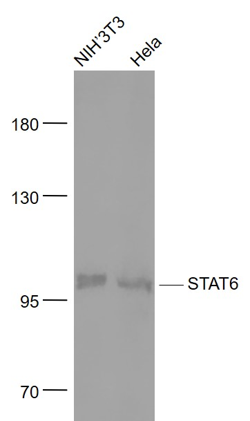 Lane 1: Mouse NIH\/3T3 cell lysates; Lane 2: Human Hela\r\ncell lysates probed with STAT6  monoclonal Antibody, Unconjugated (bsm-52239R) at 1:1000 dilution and 4\u02daC overnight incubation. Followed by conjugated secondary antibody incubation at 1:20000 for 60 min at 37\u02daC.