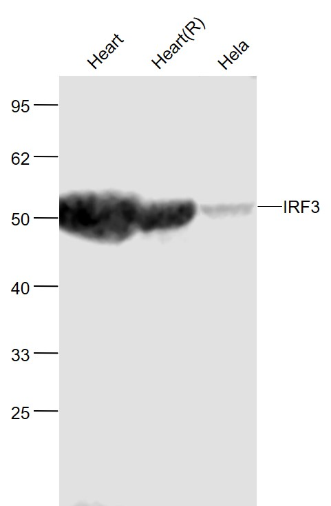 Lane 1: Mouse Heart  lysates; Lane 2: Rat Heart  lysates; Lane 3: Human Hela cell lysates probed with IRF3 Polyclonal  Antibody, Unconjugated (bs-2993R) at 1:1000 dilution and 4\u02daC overnight incubation. Followed by conjugated secondary antibody incubation at 1:20000 for 60 min at 37\u02daC.