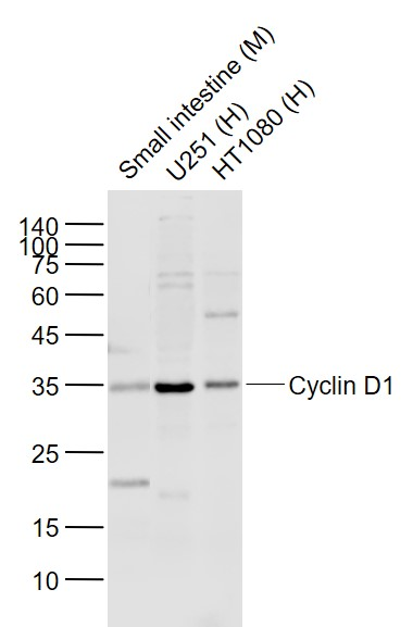Lane 1: Mouse Small intestine lysates; Lane 2: Human U251 cell lysates; Lane 3: Human HT1080 cell lysates probed with Cyclin D1 Polyclonal   Antibody, Unconjugated (bs-0623R) at 1:1000 dilution and 4\u02daC overnight incubation. Followed by conjugated secondary antibody incubation at 1:20000 for 60 min at 37\u02daC.