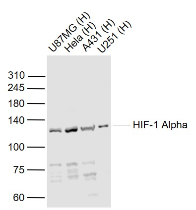 Lane 1: Human U-87MG cell lysates; Lane 2: Human Hela cell lysates; Lane 3: Human A431 cell lysates; Lane 4: Human U251 cell lysates probed with HIF-1 Alpha Polyclonal  Antibody, Unconjugated (bs-0737R) at 1:1000 dilution and 4\u02daC overnight incubation. Followed by conjugated secondary antibody incubation at 1:20000 for 60 min at 37\u02daC.