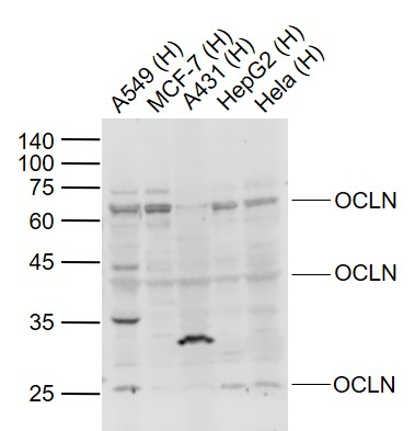 Lane 1: Human A549 cell lysates; Lane 2: Human MCF-7 cell lysates; Lane 3: Human A431 cell lysates; Lane 4: Human HepG2 cell lysates; Lane 5: Human Hela cell lysates probed with Occludin Polyclonal Antibody, Unconjugated (bs-1495R) at 1:1000 dilution and 4\u02daC overnight incubation. Followed by conjugated secondary antibody incubation at 1:20000 for 60 min at 37\u02daC.