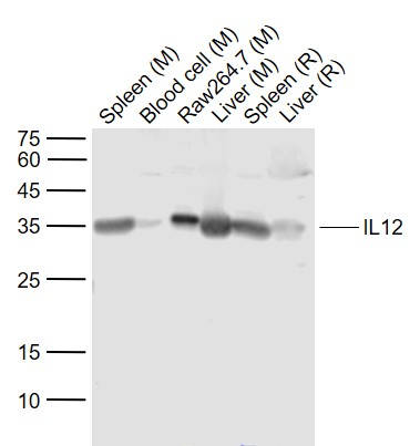 Lane 1: Mouse Spleen lysates; Lane 2: Mouse Blood cell lysates; Lane 3: Mouse RAW264.7 cell lysates; Lane 4: Mouse Liver lysates; Lane 5: Rat Spleen lysates; Lane 6: Rat Liver lysates probed with IL-12 alpha Polyclonal Antibody, Unconjugated (bs-0767R) at 1:1000 dilution and 4\u02daC overnight incubation. Followed by conjugated secondary antibody incubation at 1:20000 for 60 min at 37\u02daC.
