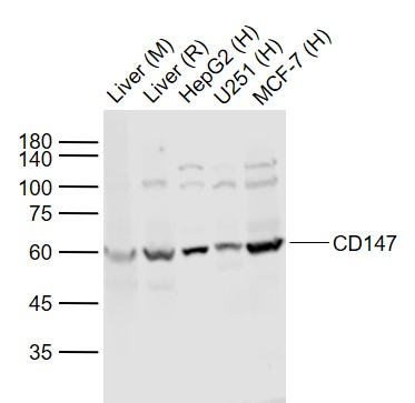 Lane 1: Mouse Liver lysates; Lane 2: Rat Liver lysates; Lane 3: Human HepG2 cell lysates; Lane 4: Human U251 cell lysates; Lane 5: Human MCF-7 cell lysates probed with CD147 Polyclonal Antibody, Unconjugated (bs-0684R) at 1:1000 dilution and 4\u02daC overnight incubation. Followed by conjugated secondary antibody incubation at 1:20000 for 60 min at 37\u02daC.