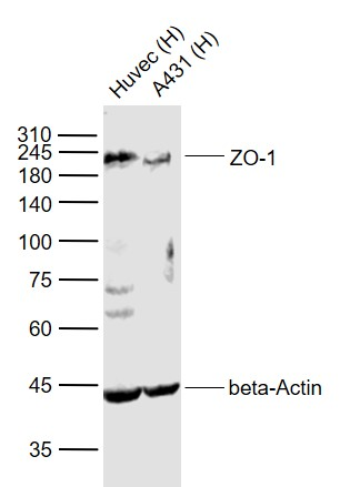 Lane 1: Human HUVEC cell lysates; Lane 2: Human A431 cell lysates probed with ZO-1 Polyclonal  Antibody, Unconjugated (bs-1329R) at 1:1000 dilution and 4\u02daC overnight incubation. Followed by conjugated secondary antibody incubation at 1:20000 for 60 min at 37\u02daC.