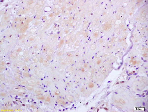 Formalin-fixed and paraffin embedded human gastric carcinoma labeled with Anti ROCK2 Polyclonal Antibody, Unconjugated (bs-1205R) at 1:200 followed by conjugation to the secondary antibody and DAB staining