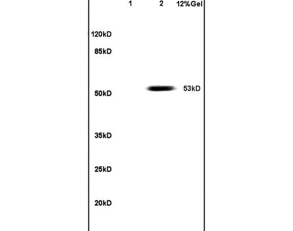 Lane 1: mouse embryo lysates Lane 2: human colon carcinoma lysates probed with Anti PAX3  Polyclonal Antibody, Unconjugated (bs-1097R) at 1:200 in 4C. Followed by conjugation to secondary antibody (bs-0295G-HRP) at 1:3000 90min in 37C. Predicted band 53kD. Observed band size: 53kD