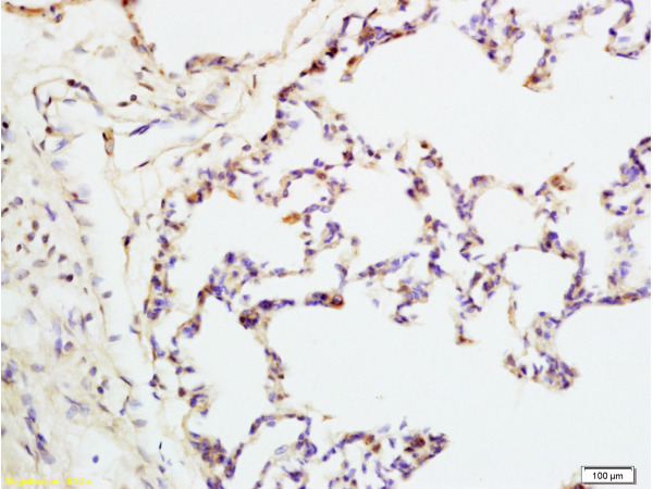Formalin-fixed and rat lung tissue labeled with Anti-IQGAP1 Polyclonal Antibody, Unconjugated (bs-1109R) at 1:200 followed by conjugation to the secondary antibody and DAB staining