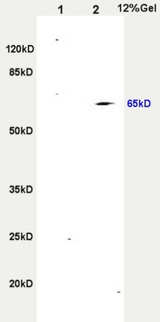 L1 rat heart, L2 rat brain lysates probed (bs-2695R) at 1:200 in 4\u02daC. Followed by conjugation to secondary antibody (bs-0295G-HRP) at 1:3000 90min in 37\u02daC. Predicted and observed band size: 65kDa.