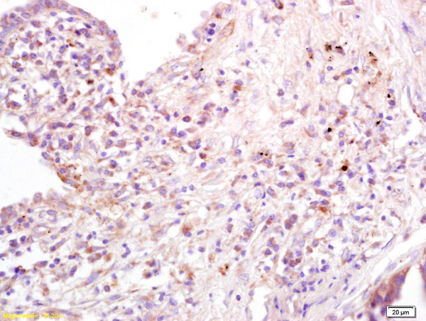 Formalin-fixed and paraffin embedded human lung carcinoma labeled with Anti-B7-1\/CD80 Polyclonal Antibody, Unconjugated (bs-2211R) at 1:200 followed by conjugation to the secondary antibody and DAB staining