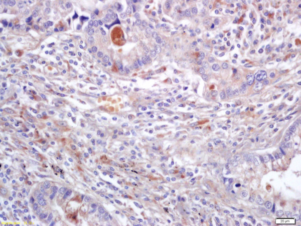 Formalin-fixed and paraffin embedded human lung carcinoma labeled with Anti-ERK2\/MAPK1 Polyclonal Antibody, Unconjugated (bs-0022R) at 1:200 followed by conjugation to the secondary antibody and DAB staining