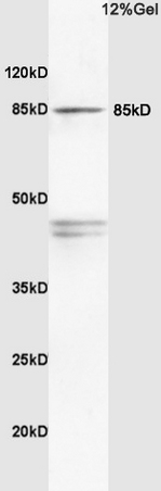 Rat brain lysates probed with Anti PI3K\/PI3 kinase p85 alpha subunit Polyclonal Antibody, Unconjugated (bs-0128R) at 1:200 in 4\u02daC. Followed by conjugation to secondary antibody (bs-0295G-HRP) at 1:3000 90min in 37\u02daC. Predicted band 80kD. Observed band size: 85kD.