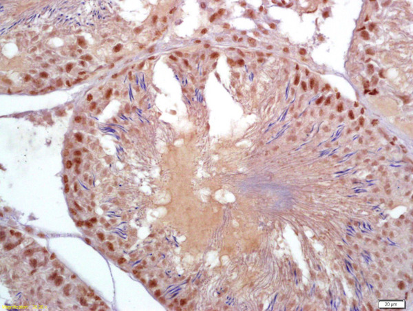 Formalin-fixed and paraffin embedded rat testis labeled with Anti-Parkin protein\/PARK2 Polyclonal Antibody, Unconjugated (bs-1865R) at 1:200 followed by conjugation to the secondary antibody and DAB staining