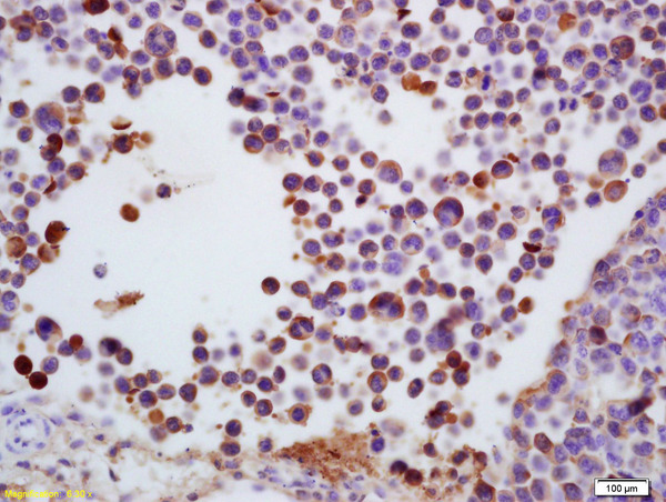 Formalin-fixed and paraffin embedded mouse colon carcinoma labeled with Anti-TdT\/DNTT Polyclonal Antibody, Unconjugated (bs-2938R) at 1:200 followed by conjugation to the secondary antibody and DAB staining