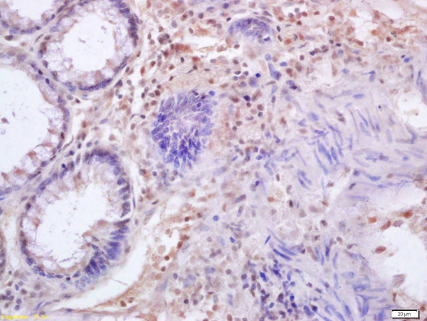 Formalin-fixed and paraffin embedded human colon carcinoma labeled with Anti-IRF3  Polyclonal Antibody, Unconjugated (bs-2993R) at 1:200 followed by conjugation to the secondary antibody and DAB staining