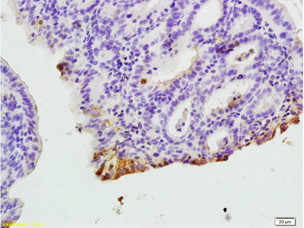 Formalin-fixed and paraffin embedded rat colitis tissue labeled with Anti-CXCR1/IL-8RA Polyclonal Antibody, Unconjugated (bs-1009R) at 1:200, followed by conjugation to the secondary antibody and DAB staining