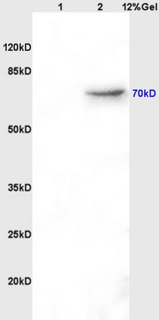 Lane 1: Rat Brain lysates; Lane 2: Rat Kidney lysates; Probed with AFP (A2) Monoclonal Antibody, Unconjugated (bsm-1621M) at 1:200, overnight at 4˚C. Followed secondary antibody (bs-0296G-HRP) at 1:3000 for 90min at 37˚C.