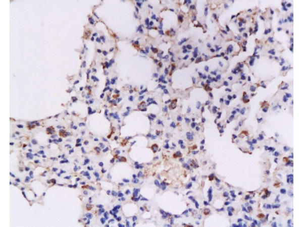 Formalin-fixed and paraffin embedded rat lung tissue labeled with Anti-IFN-gamma Polyclonal Antibody, Unconjugated (bs-0480R) at 1:200, followed by conjugation to the secondary antibody and DAB staining