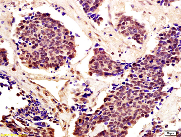 Formalin-fixed and paraffin embedded human lung carcinoma with labeled Anti-Cytomegalovirus pp65 Polyclonal Antibody, Unconjugated (bs-0271R) at 1:200, followed by conjugation to the secondary antibody and DAB staining