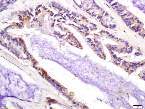 Formalin-fixed and paraffin embedded human colon carcinoma labeled with Anti-P21 Polyclonal Antibody, Unconjugated (bs-10129R) at 1:200 followed by conjugation to the secondary antibody and DAB staining