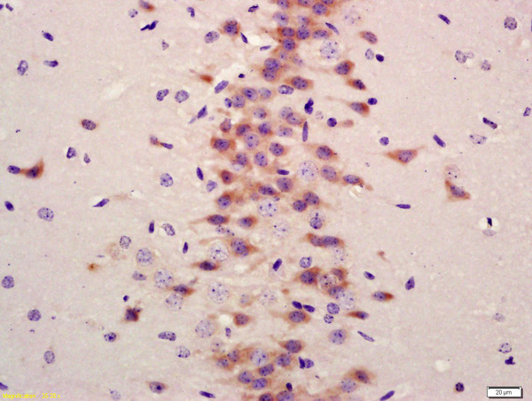 Formalin-fixed and paraffin embedded mouse brain labeled with Anti-LC3A/B Polyclonal Antibody, Unconjugated (bs-11731R) at 1:200 followed by conjugation to the secondary antibody and DAB staining