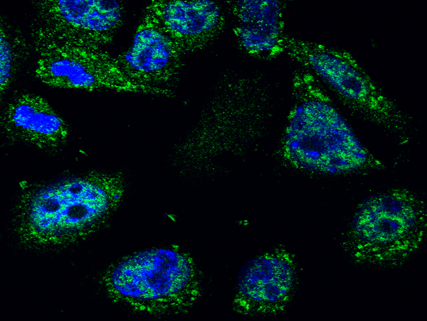 Image kindly submitted by Piotr Mamczur from Wroclaw University. Immunofluorescent localization of p53 protein in mouse squamous cell cancer (KLN-205 cell line) with BS-0033R antibody (1:50) and FITC-labeled secondary antibodies (1:2000). The nuclei were stained with DAPI.