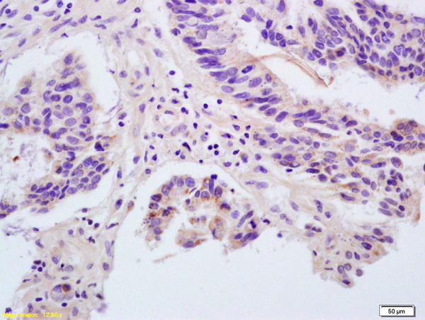 Formalin-fixed and paraffin embedded human rectal carcinoma labeled with Rabbit Anti ANGPTL1/Angiopoietin 1/ANG-1 Polyclonal Antibody, Unconjugated (bs-0800R) at 1:200 followed by conjugation to the secondary antibody and DAB staining