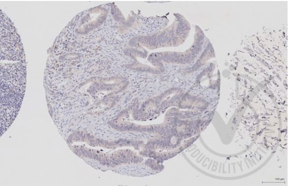 Images provided the Independent Validation Program (badge number 29651)Formalin-fixed and paraffin embedded human colon labeled with Rabbit Anti-c-Raf\/Raf1 Polyclonal Antibody (bs-1703R) at 1:250 overnight at room temperature followed by conjugation to secondary antibody.