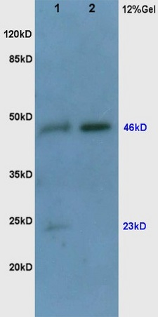 Human colon carcinoma lysates probed with Rabbit Anti-VEGF Polyclonal Antibody (bs-0279R) at 1:200 in 4˚C. Followed by conjugation to secondary antibody (bs-0295G-HRP) at 1:3000 90min in 37˚C. Predicted and observed band size: 23,46kDa