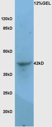 Mouse lung lysates probed with Rabbit Anti-LAMP-1 Polyclonal Antibody, Unconjugated (bs-1970R) at 1:200 overnight at 4\u02daC. Followed by conjugation to secondary antibody (bs-0295G-HRP) at 1:3000 for 90 min at 37\u02daC.