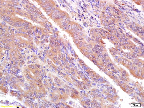 Formalin-fixed and paraffin embedded human breast cancer labeled with  Rabbit Anti CA153\/EMA\/Mucin 1 Polyclonal Antibody, Unconjugated (bs-1239R) at 1:200 followed by conjugation to the secondary antibody and DAB staining