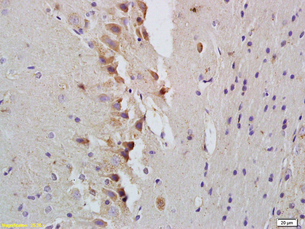 Formalin-fixed and paraffin embedded rat brain labeled with Rabbit Anti-STAT1 Polyclonal Antibody, Unconjugated (bs-1317R) at 1:200 followed by conjugation to the secondary antibody and DAB staining