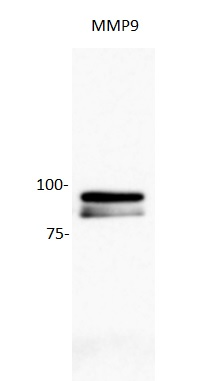Image kindly submitted by Hailing Yang. Human glioblastoma cell line (U87) probed with Rabbit Anti-MMP9 Polyclonal Antibody (bs-0397R).