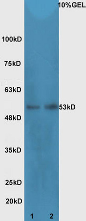Lane 1: Mouse intestinal lysates Lane 2: mouse testicular lysates  probed with Rabbit Anti-Cdc25C Polyclonal Antibody, Unconjugated (bs-9597R) at 1:300 overnight at 4\u02daC. Followed by conjugation to secondary antibody (bs-0295G-HRP) at 1:5000 for 90 min at 37\u02daC.
