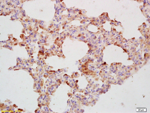 Formalin-fixed and paraffin embedded mouse lung labeled with Rabbit Anti-APH1a  gamma Polyclonal Antibody (bs-4259R) at 1:200 followed by conjugation to the secondary antibody and DAB staining.