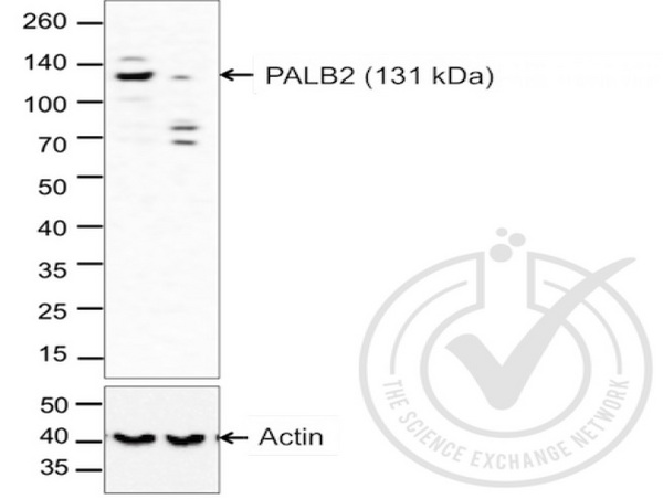 Images provided by the Independent Validation Program (badge number 29749). Lane 1: A549 cell extract Lane 2: c6\/36 mosquito cell extract (non-reactive\\nspecies) probed with Rabbit Anti-PALB2 Polyclonal Antibody, Unconjugated (bs-0588R) at 1:500 overnight at 4\u02daC. Followed by conjugation to secondary antibody at 1:20000 for 60 min at 26\u02daC.