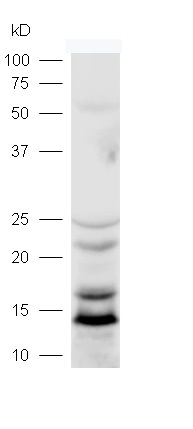 Lane 1: mouse brain lysates probed with Rabbit Anti-LC3 Polyclonal Antibody, Unconjugated (bs-8878R) at 1:300 overnight at 4\u02daC. Followed by conjugation to secondary antibody (bs-0295G-HRP) at 1:5000 for 90 min at 37\u02daC.