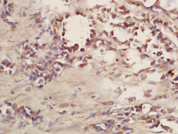 Formalin-fixed and paraffin embedded human lung carcinoma labeled with Rabbit Anti-CD101 Polyclonal Antibody, Unconjugated (bs-10727R) at 1:200 followed by conjugation to the secondary antibody and DAB staining