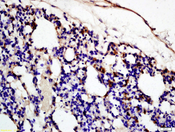 Formalin-fixed and paraffin embedded rat lung labeled with Rabbit Anti-Complement fragment 3c Polyclonal Antibody (bs-6416R) at 1:200 followed by conjugation to the secondary antibody and DAB staining\\n